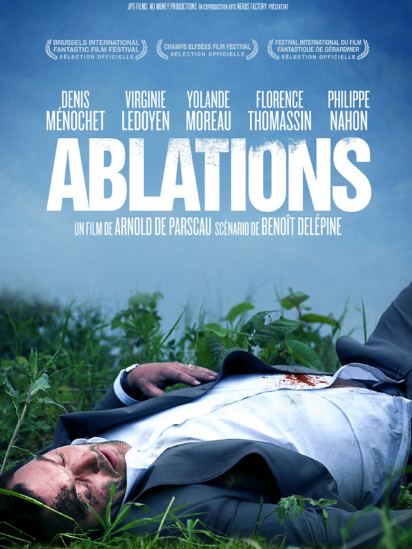 "Afficher ""Ablations"""
