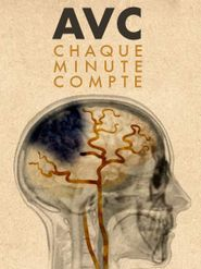 AVC: chaque minute compte