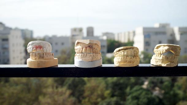 À pleines dents